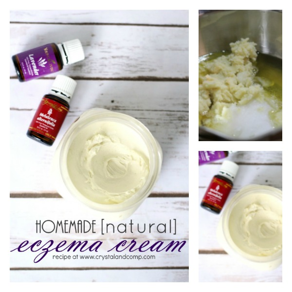eczema cream fb